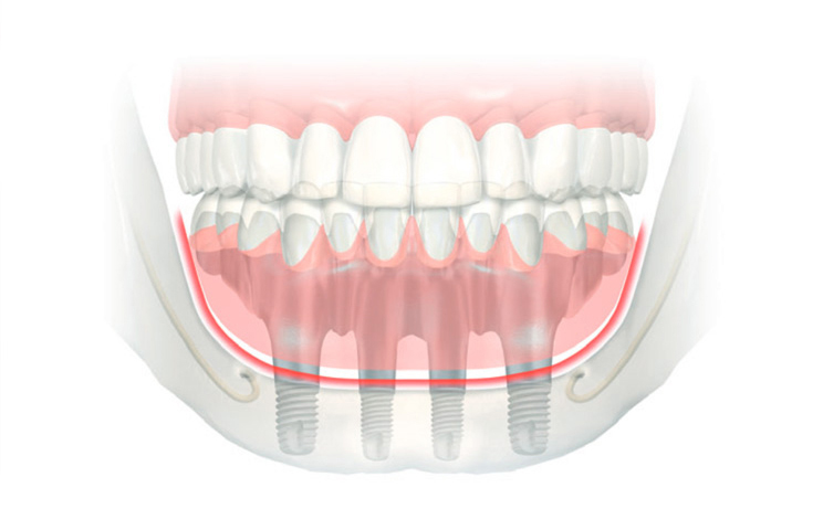 Why you should consider All-on-4 Dental Implant treatment