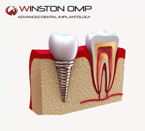 Dental Implant in Singapore