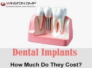 An Advanced Dentistry – Singapore Dental Implant