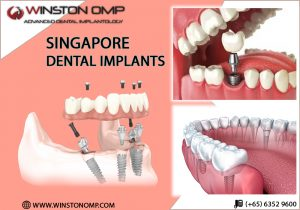 Singapore Dental Implant