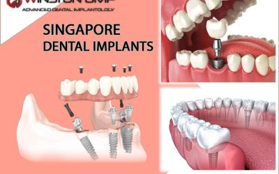 Restore Your Million Dollar Smile With Dental Implants