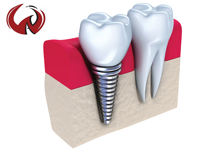 Dental Implants: A Pursuit Towards Dental Perfection