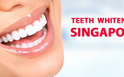 Teeth Whitening Singapore: A Way To Acquire Shinning Teeth